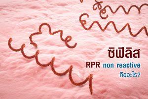 RPR non reactive คือ